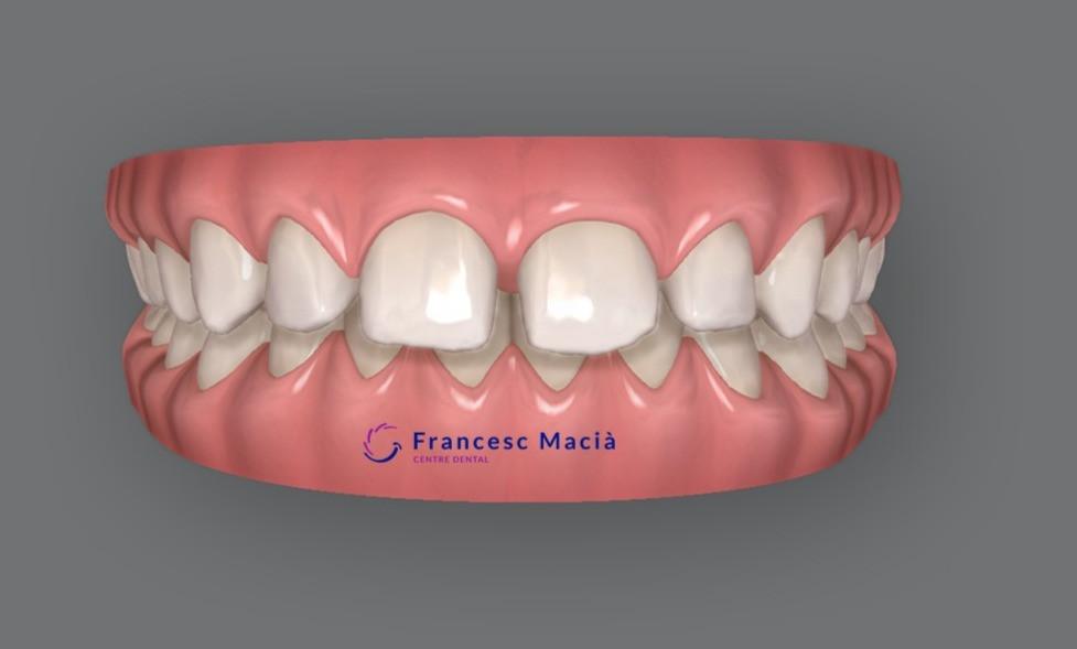 Diastema entre los dientes