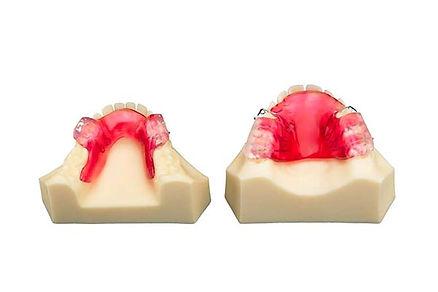 Dispositivo de avance mandibular para ni