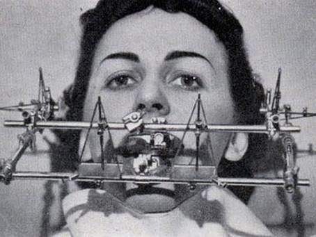 Evolución de los brackets dentales