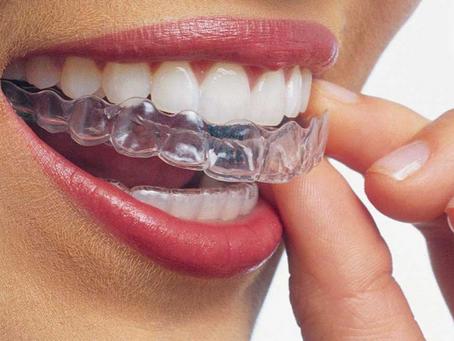 ¿Por qué tengo que usar retenedores de ortodoncia?