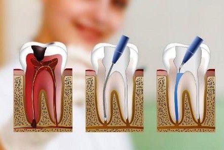 Qué es una endodoncia?