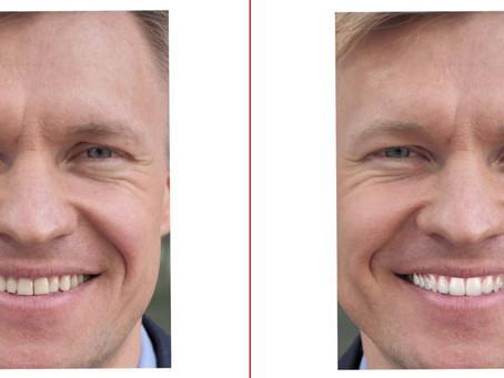 ¿Qué se necesita para hacerse un diseño de sonrisas?