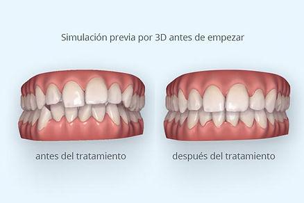 Simulacion 3D de resultado ortodoncia in