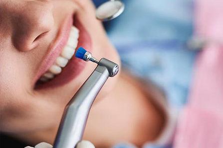 Limpieza dental en Sant Cugat del Vallés