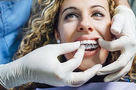 Ortodoncia para adultos invisalign full