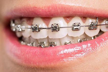 Ortodoncia con brackets para mayores de