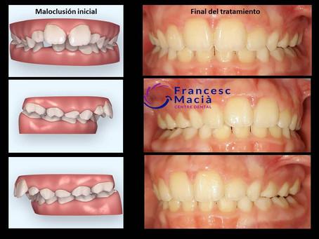¿Mandíbula pequeña? Caso de éxito de avance mandibular sin ortodoncia