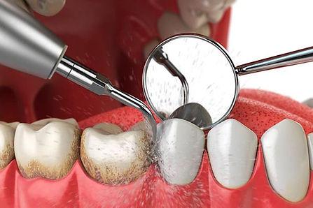 Limpieza dental del sarro en Sant Cugat