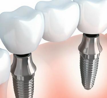 implante de titanio, el ajuste perfecto para tus piezas dentales
