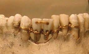 Aparatos dentales antiguos