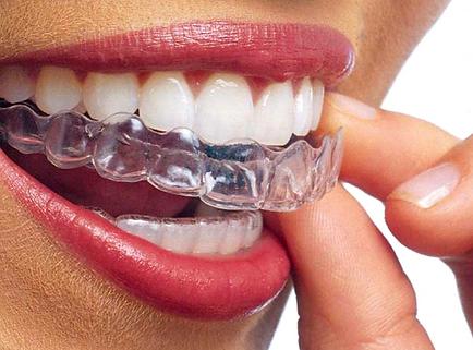 Boca con Ortodoncia Invisible Invisalign