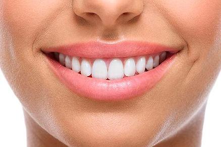 Mejor carillas dentales en Sant Cugat de