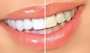 Comparativa de blanqueamiento dental