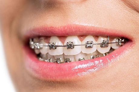 Ortodoncia para adolescentes con bracket