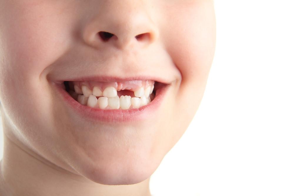 Falta de un diente