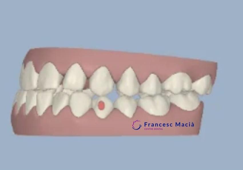 Clase III dental