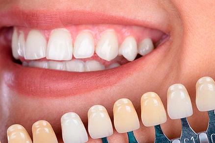 Carillas dentales composite en Sant Cuga
