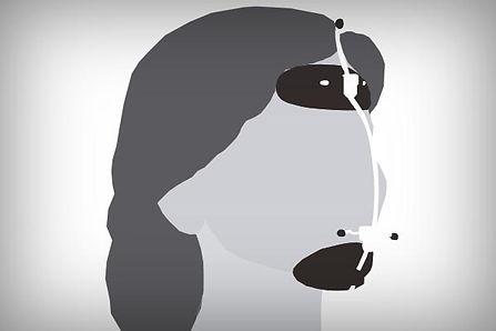 Ortodoncia infantil y máscara de tracció