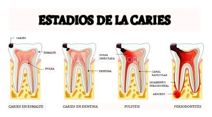 Evolución de la caries dental
