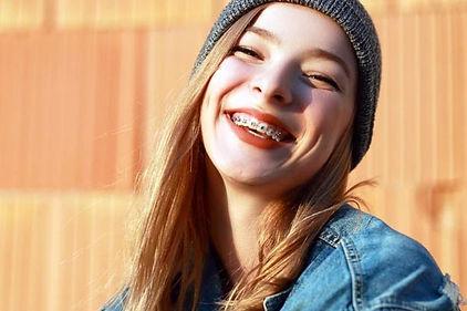 Ortodoncia adolescentes Sant Cugat del V