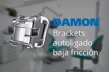 Brackets autoligado baja friccion damon