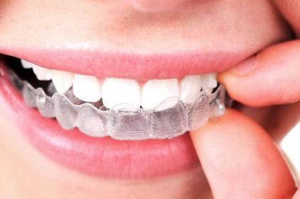 Ortodoncia invisalign en Sant Cugat del