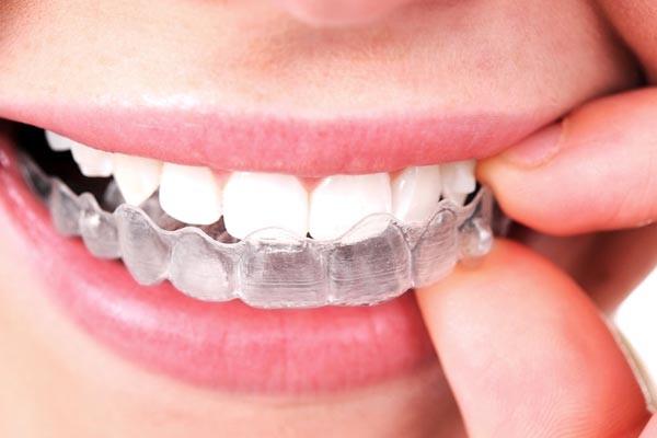 Técnica moderna de ortodoncia Invisible Invisalign.