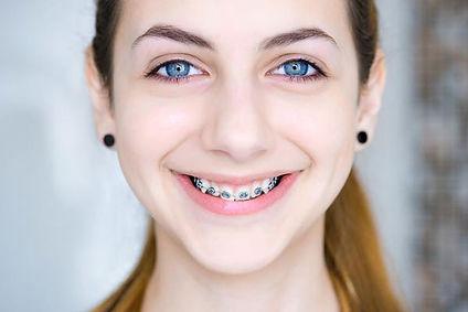 Ortodoncia con brackets en sant cugat de