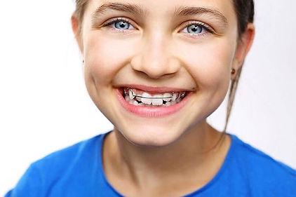 Ortodoncia interceptiva en Sant Cugat de