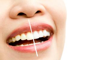 Sonrisa mostrando un blanqueamiento dental