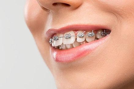 Ortodoncia con brackets metálicos para a