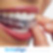 Boca con Ortodoncia Invisible