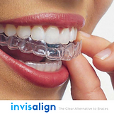 boca sonriendo con ortodoncia invisible