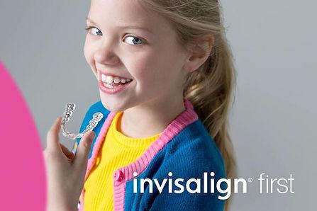 Ortodoncia invisible infantil mediante i