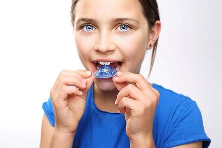 Que es la ortodoncia interceptiva en San