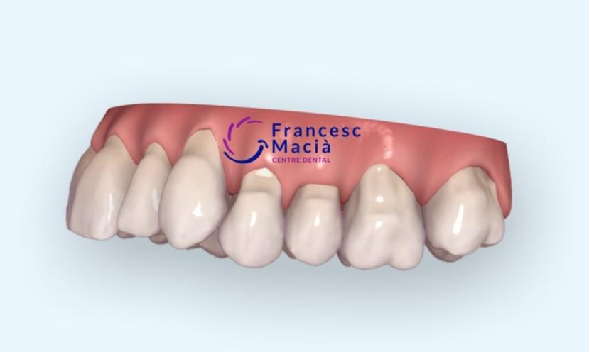 Recesiones dentales