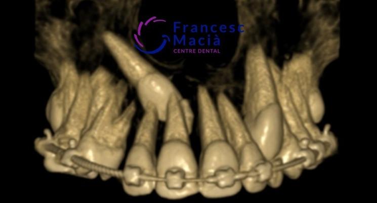 Colmillo definitivo incluido con tratamiento de ortodoncia
