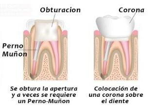 Qué es una reconstrucción dental?