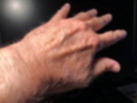 Hand-hair.jpg