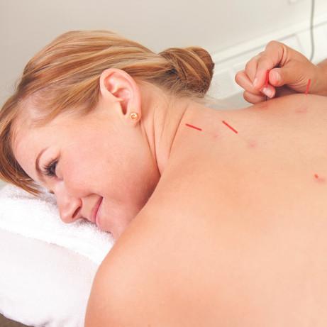 Acupuncture in progress