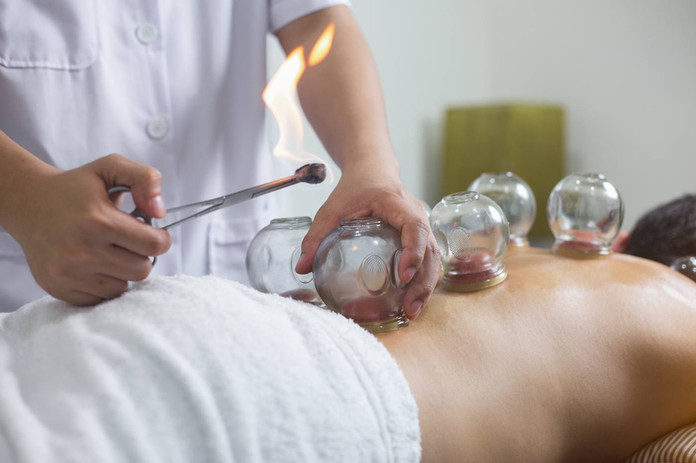 Cupping at Boxmoor Acupuncture