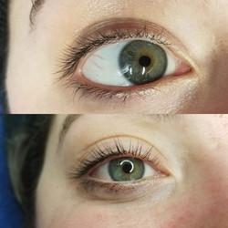 Natural looking results