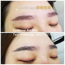 tattoo_removal_eyebrow_5.jpg