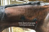TENS Elektrotherapie