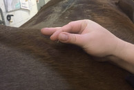 Dry Needling Triggerpunkt Akupunktur