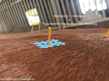 Effektive Kombination: Cross Taping - Akutaping - Dry Needling Akupunktur