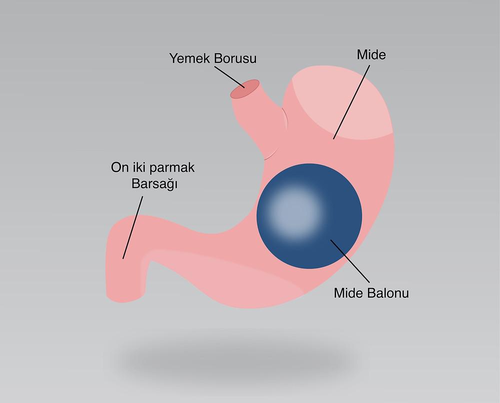 Mide balonu mide botoksundan üstün mü?