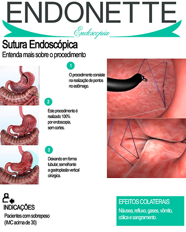 Dr. Guilherme Antoniette - Clinica Endonette - Sutura Endoscópica