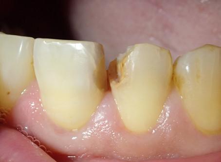 前歯の白い詰め物