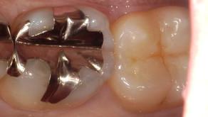 奥歯の自費の白い詰め物。術後数週間後もあります。